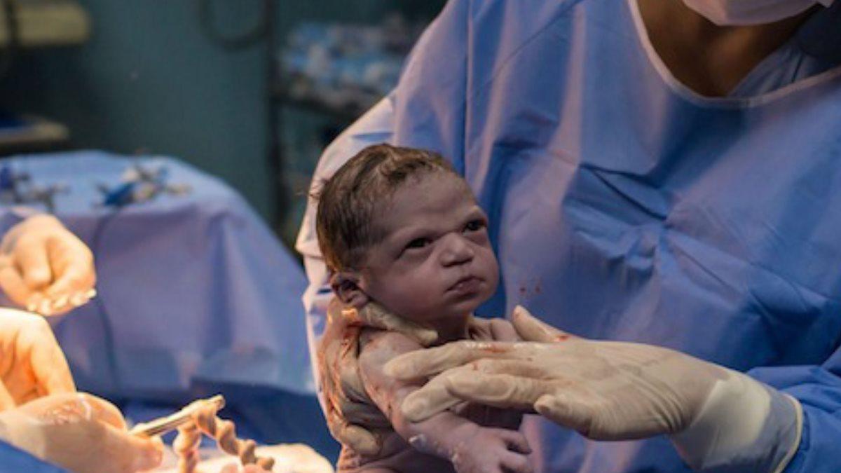 Новорожденная угрюмо посмотрела на врача удалить