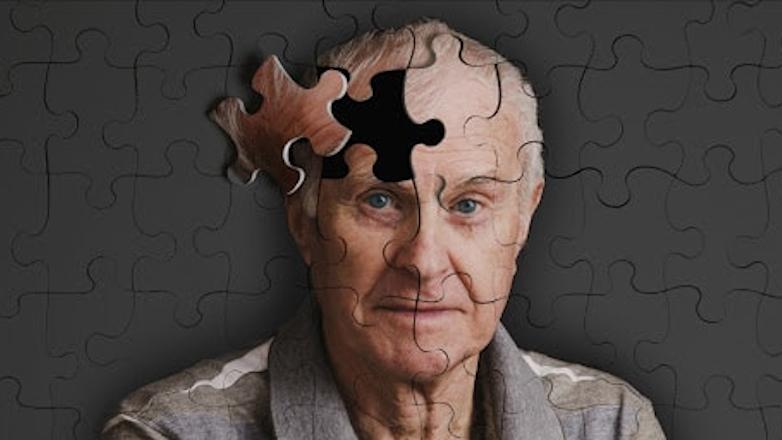 деменция слабоумие болезнь Альцгеймера