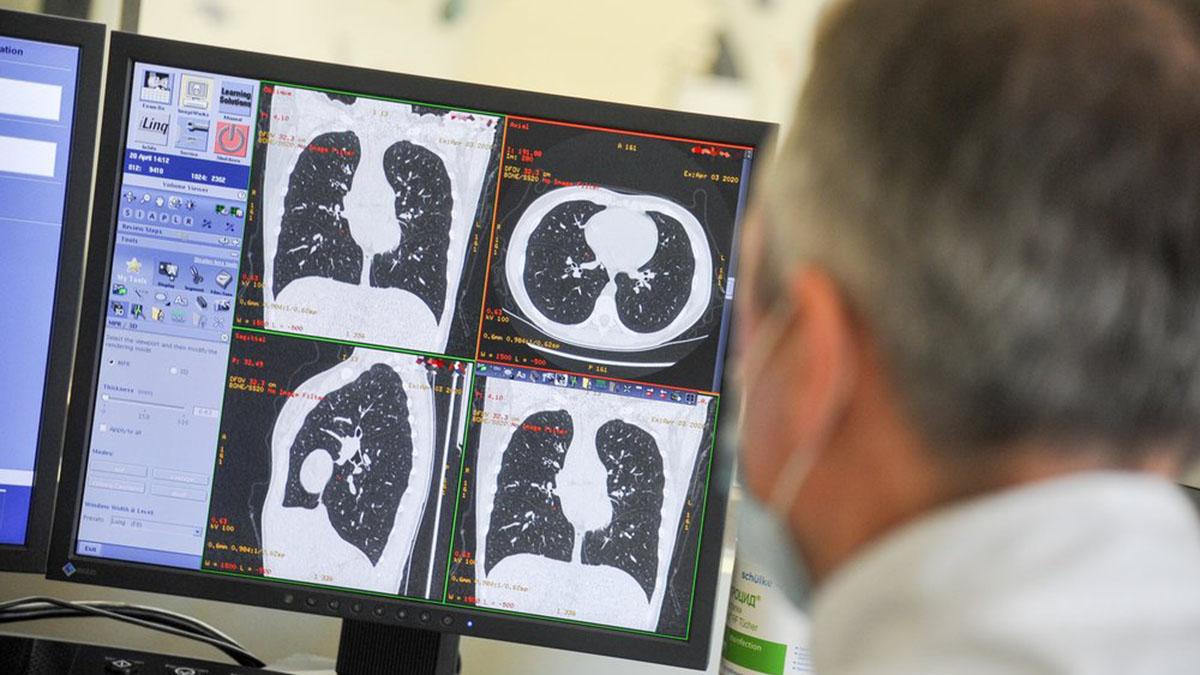 Лёгкие МРТ Флюорография Лучевая диагностика