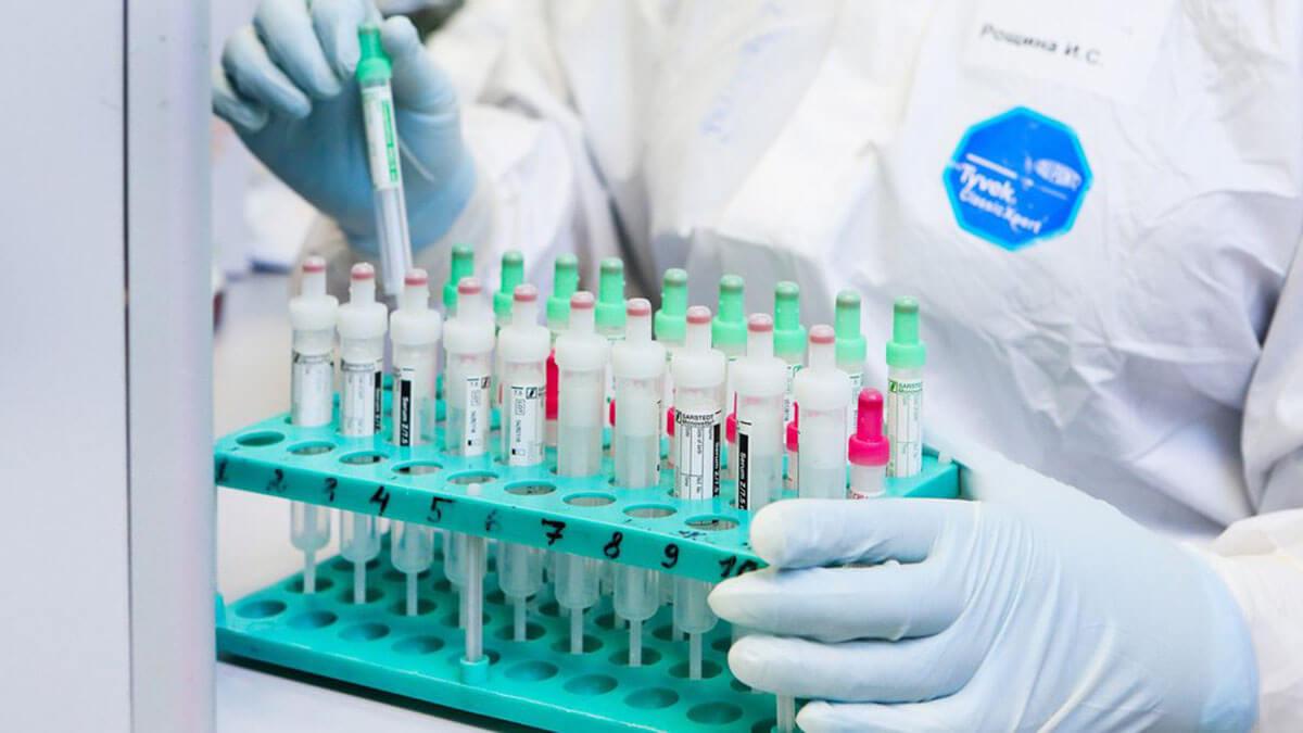 Лаборатория Анализы тест Коронавирус