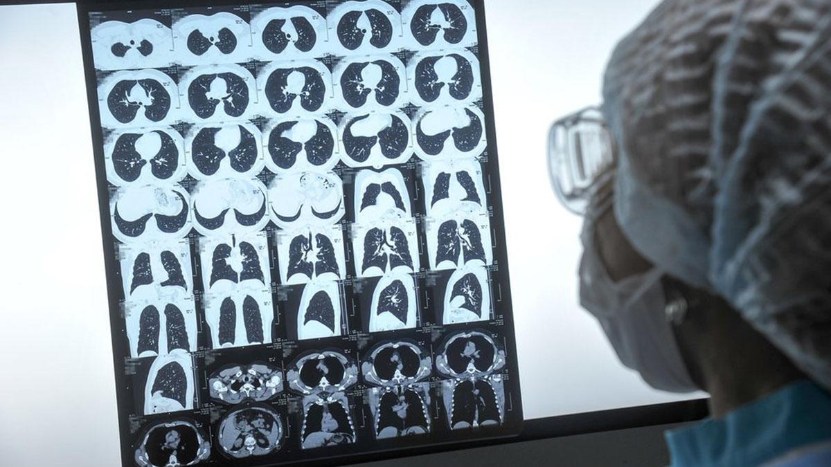 Процедура компьютерной томографии лёгких