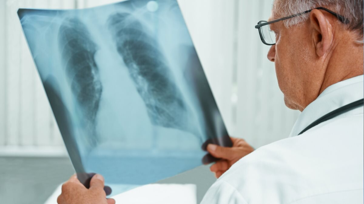 Доктор врач Рентгеновский снимок рентген два