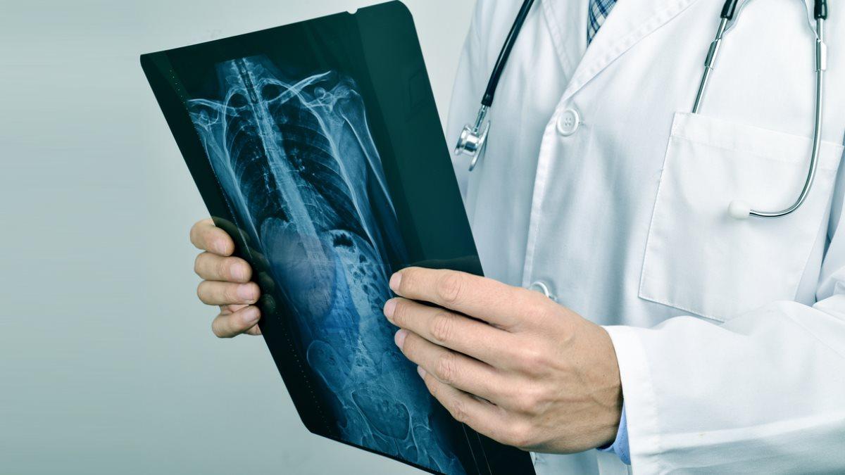 Врач держит рентгеновский снимок