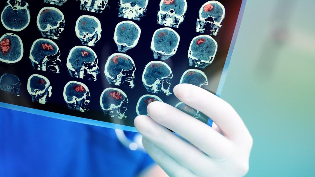 Рак мозга МРТ
