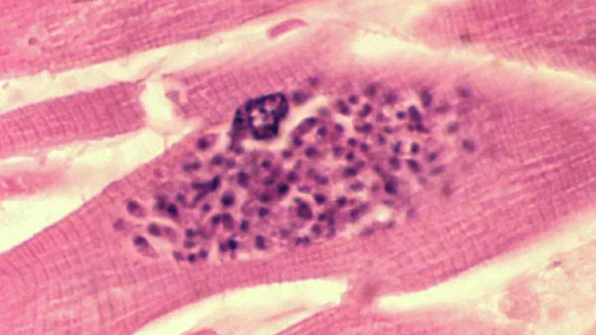 Паразит токсоплазма внутри клетки