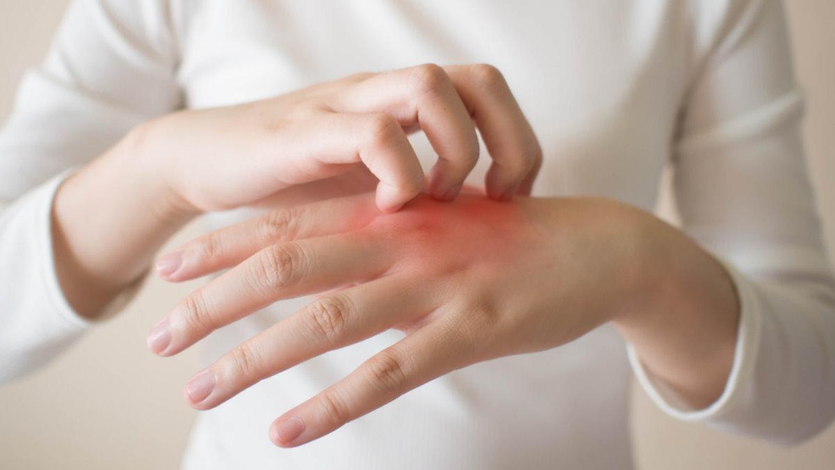 Зуд кожное заболевание экзема дерматит аллергия раздражение сыпь чесать расчёсывать один