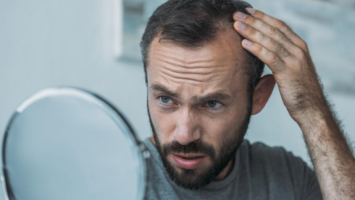 облысение потеря волос мужчина с зеркалом два