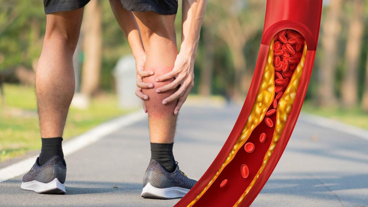 Холестерин атеросклероз склероз боль в ногах икрах