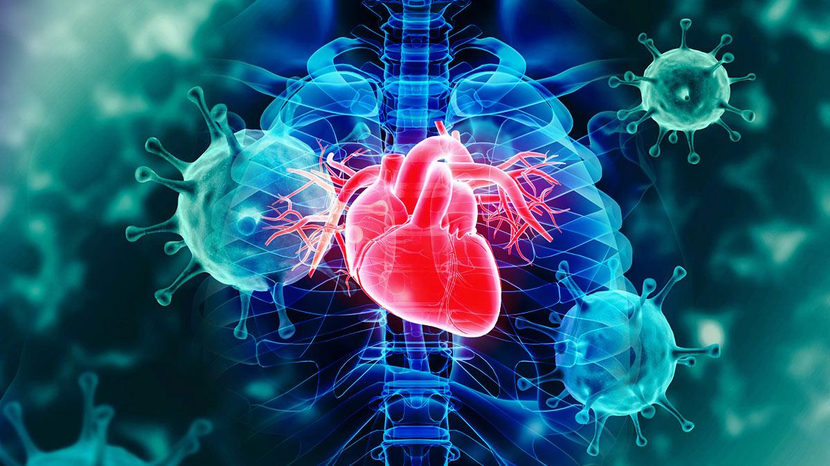 сердце коронавирус осложнения заболевание