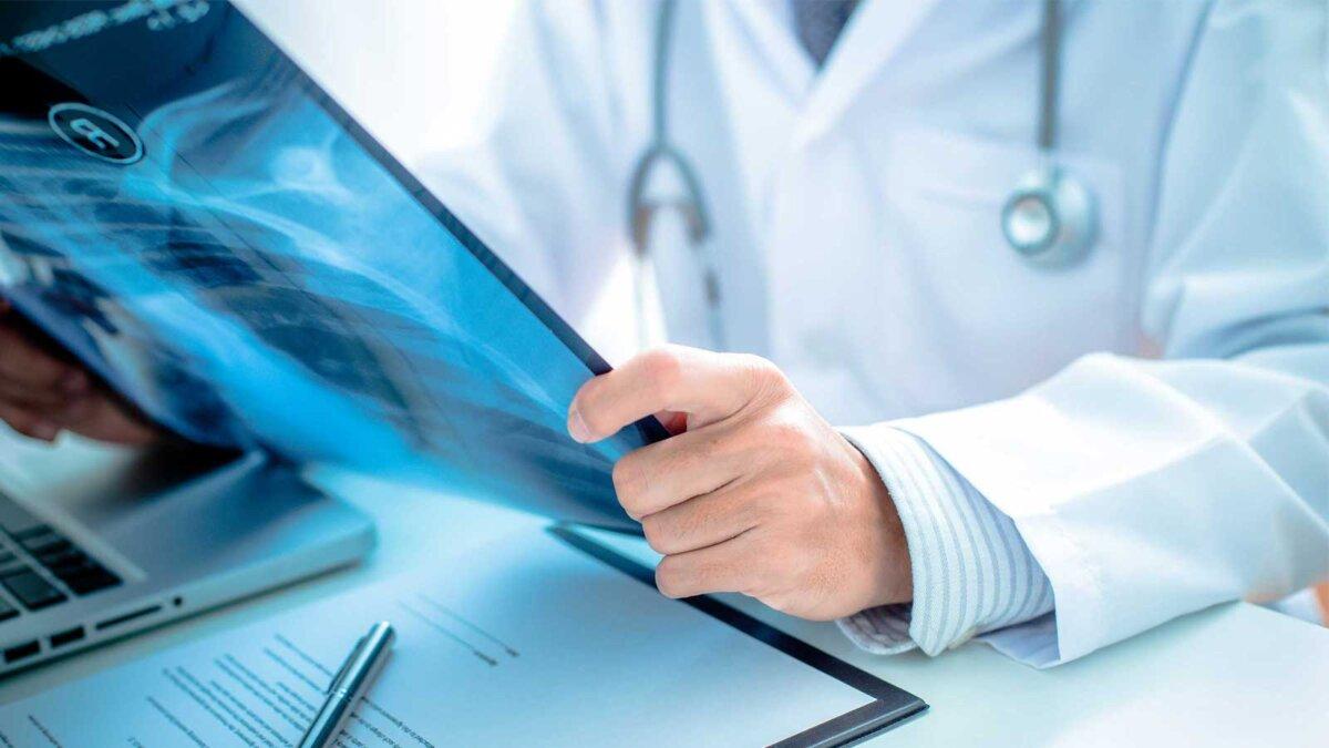 Мужчина врач держит рентгеновский снимок