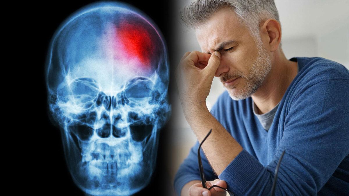 головокружение головная боль инсульт мужчина
