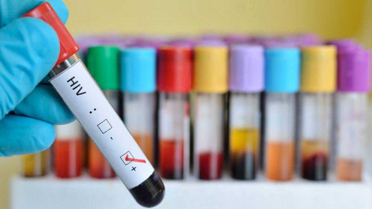 положительный тест на ВИЧ