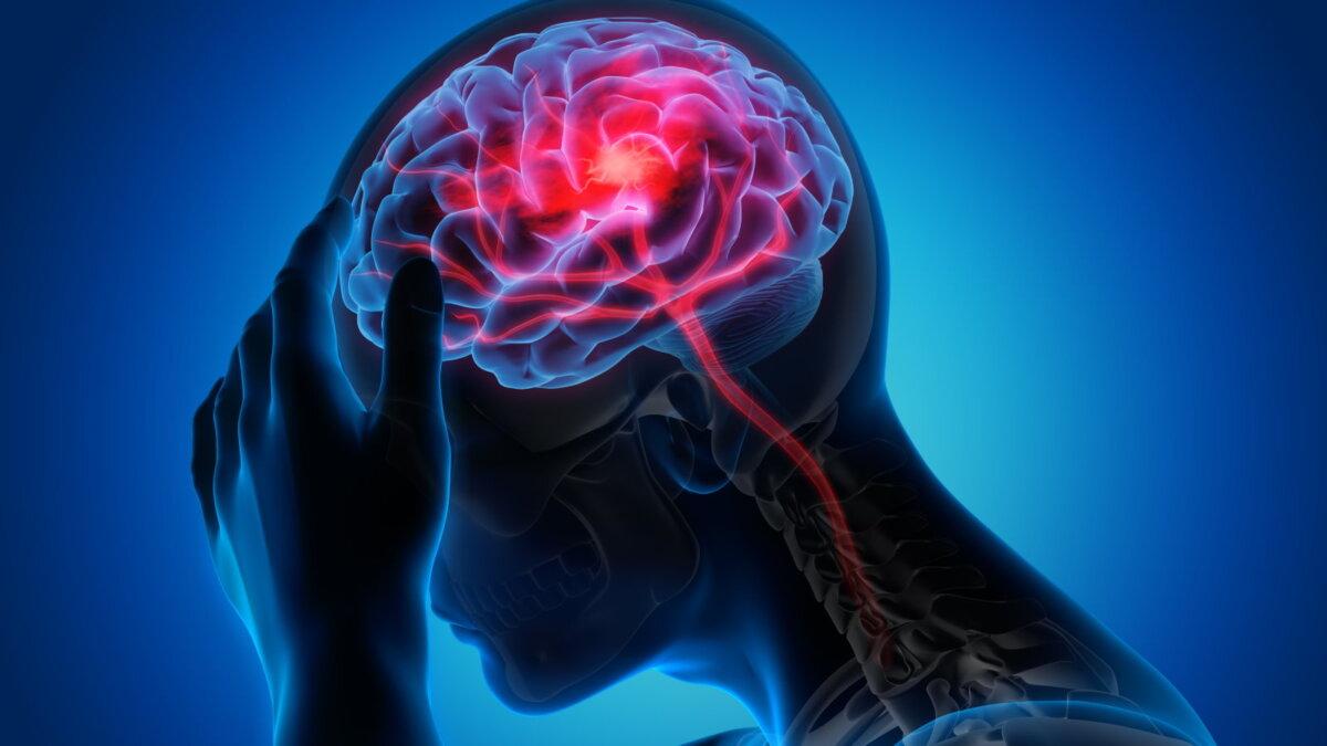 головной мозг инсульт ишемия удар сосуды 3D один