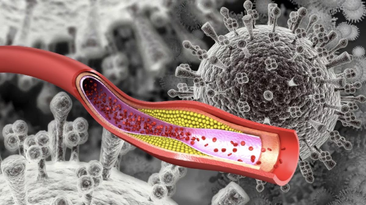 холестерин и коронавирус