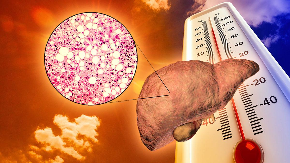 повышение температуры стеатоз неахолическая жировая болезнь печени