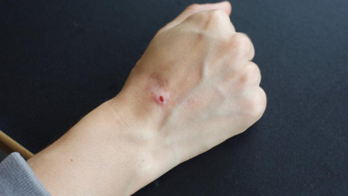 Рак кожи Карцинома