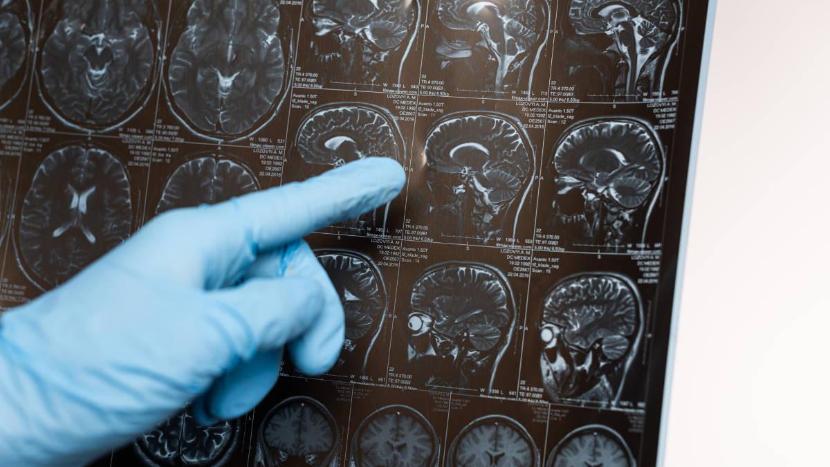 МРТ рентген мозг