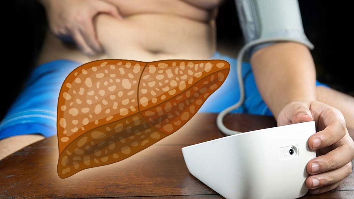 ожирение болезнь печени давление мужчина
