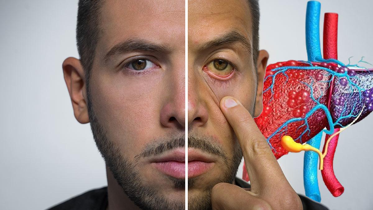 жировая болезнь печени симптомы пожелтение глаз и кожи