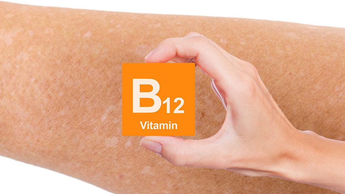 белые пятна на коже рук витамин b12