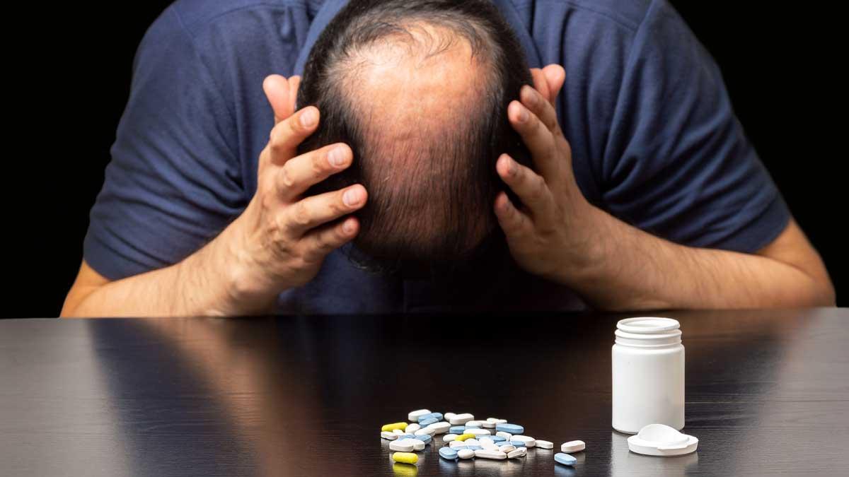 облысение таблетки стол голова