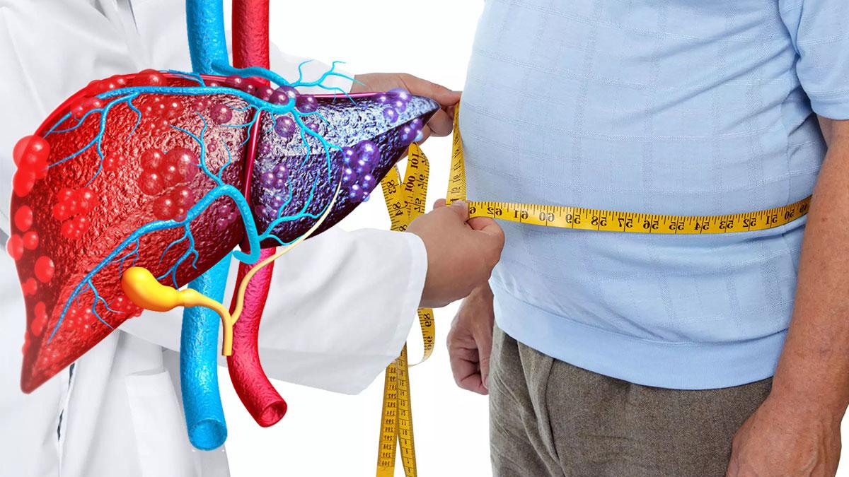 потеря веса и заболевание печени
