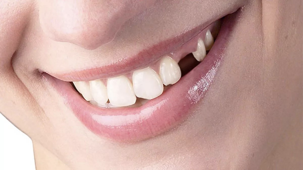 выпал зуб улыбка