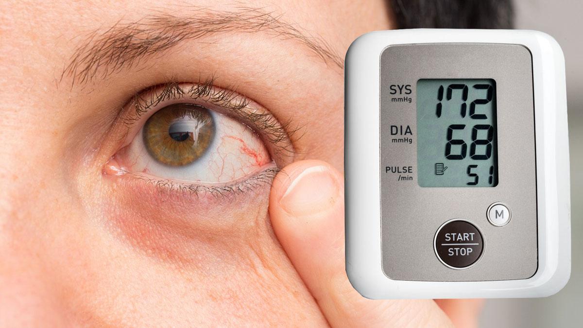 гипертония давление тонометр покрасневшие глаза