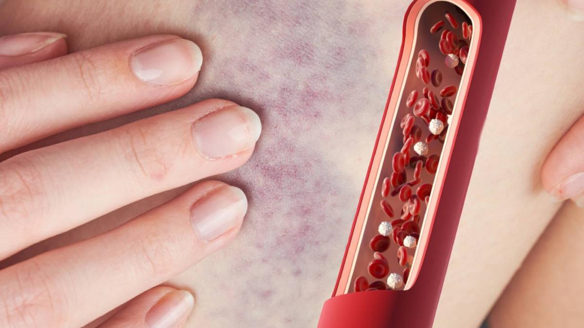Синяк и рак крови кровеносный сосуд