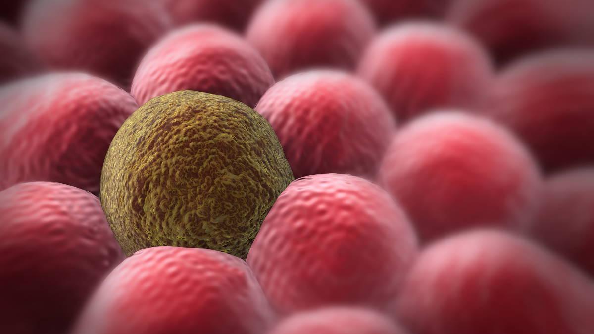 раковая клетка стареющая