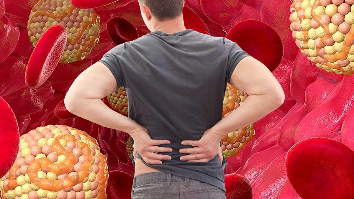 холестерин болит спина мужчина