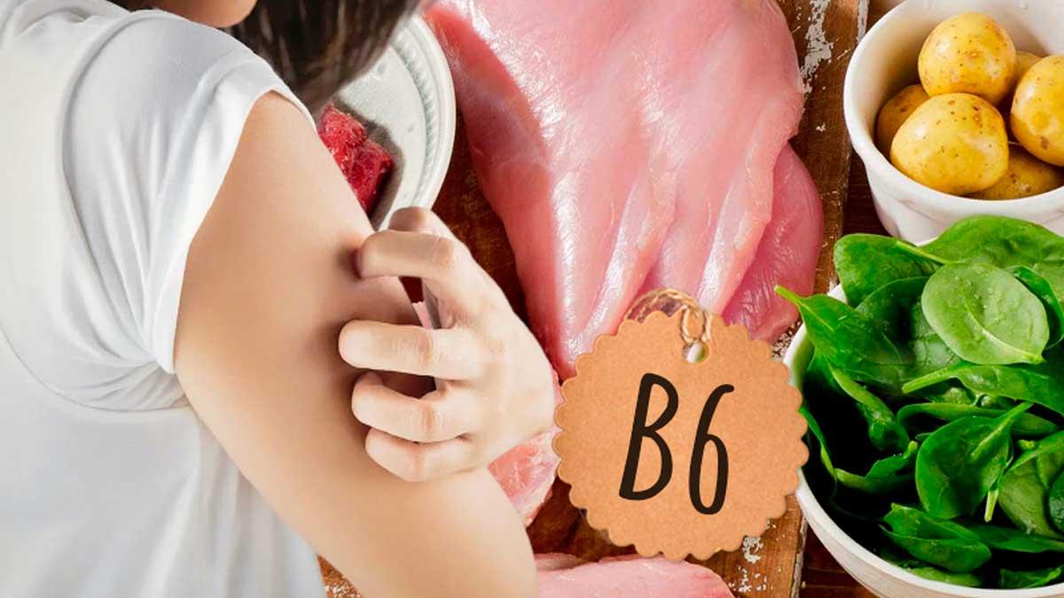 девушка чешется высыпания продукты витамина B6
