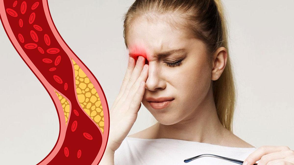 высокий холестерин и проблемы с глазами