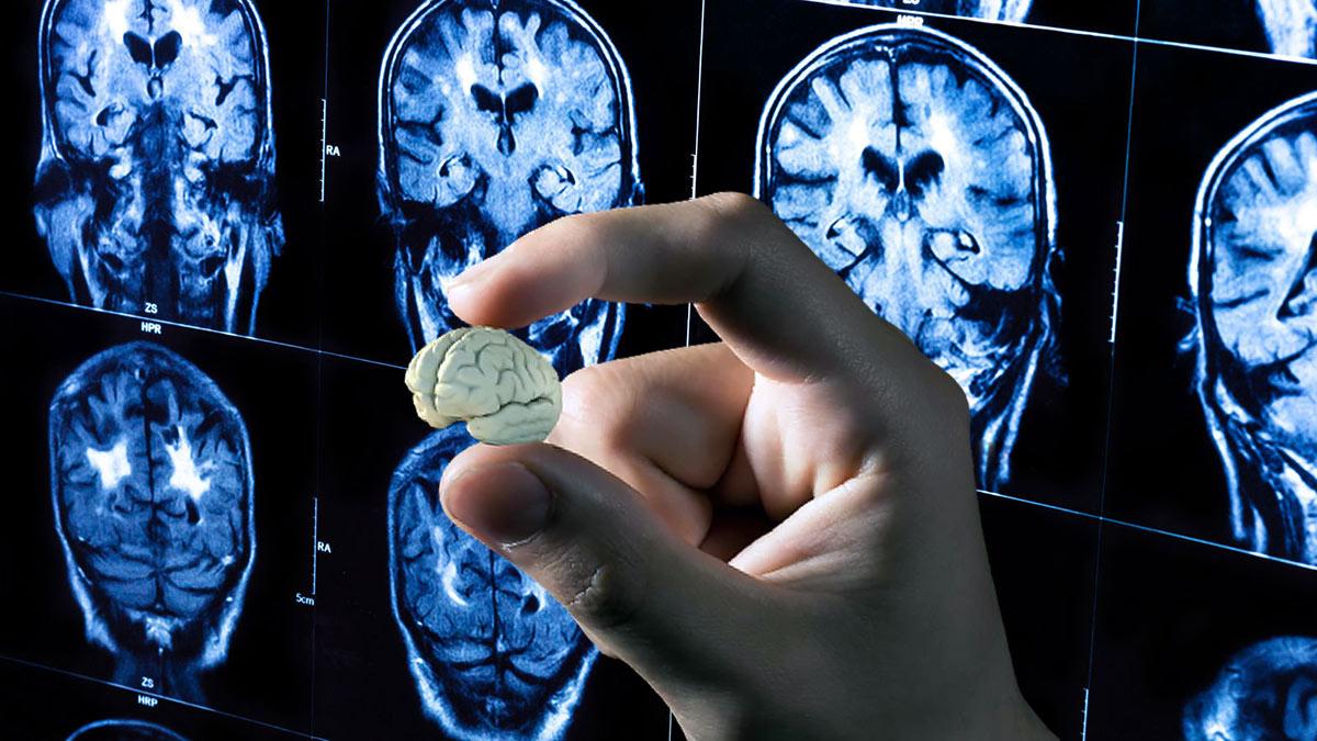 мини мозг человека