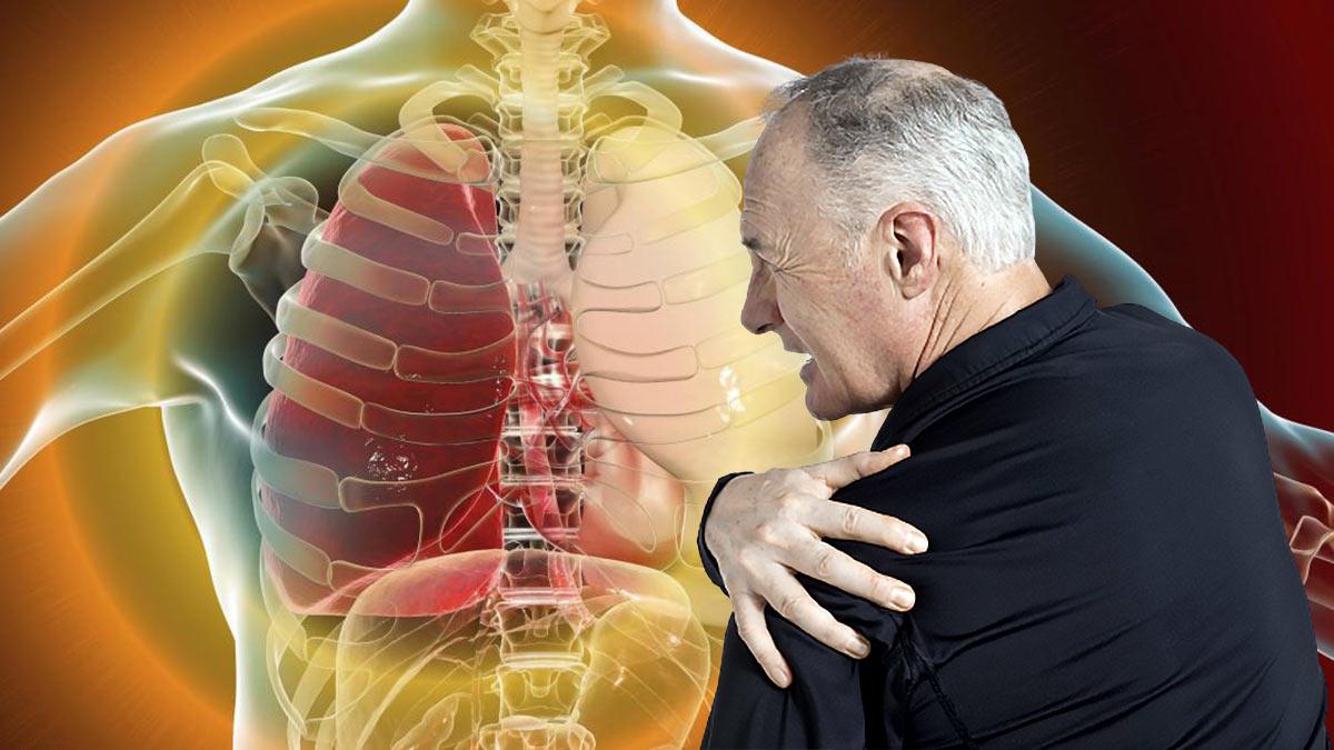 рак легких симптомы