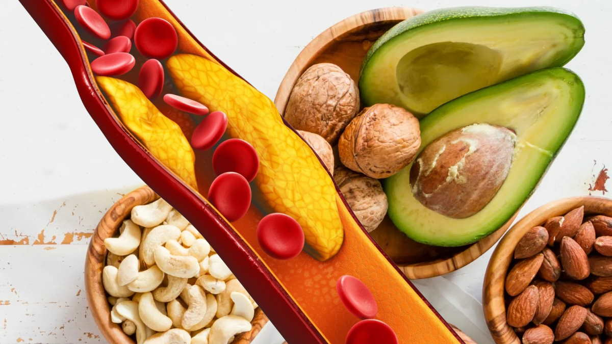 орехи авокадо и холестерин