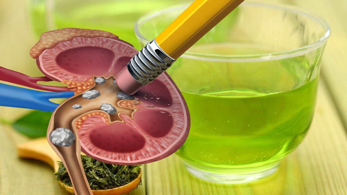 камни в почках и зелёный чай