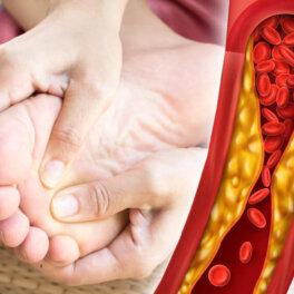 Высокий холестерин: признаки на ступнях, предупреждающие о возможной опасности
