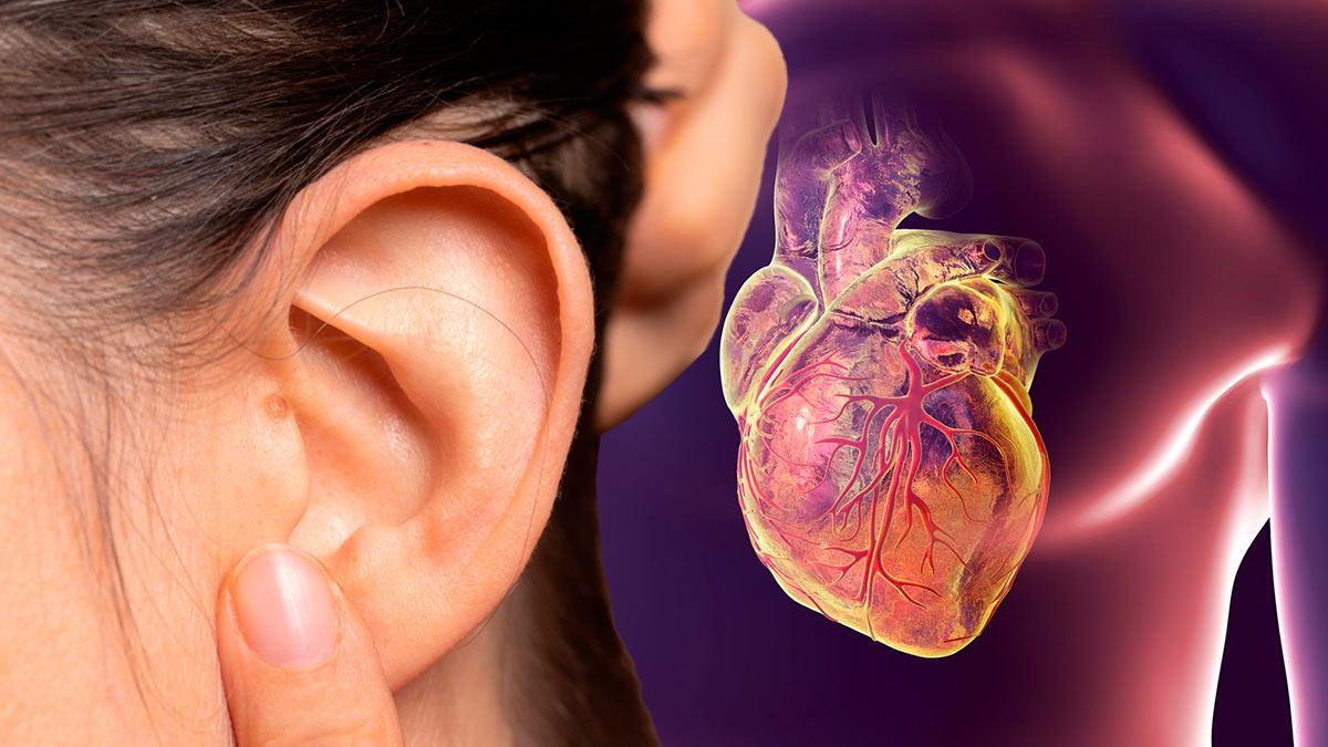 Ухо симптомы ишемической болезни сердца
