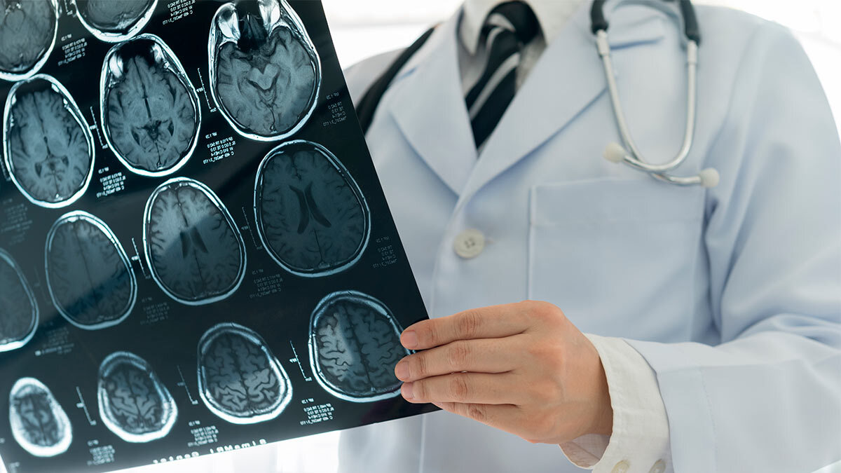 врач снимок мозг