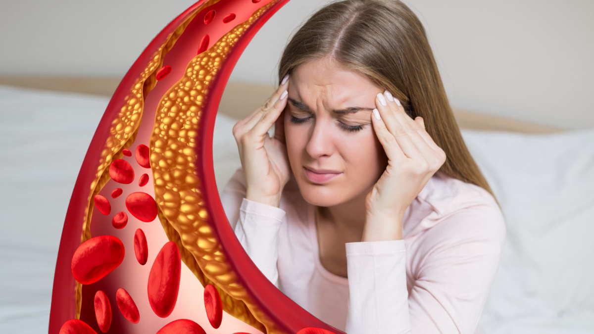 холестерин и головная боль