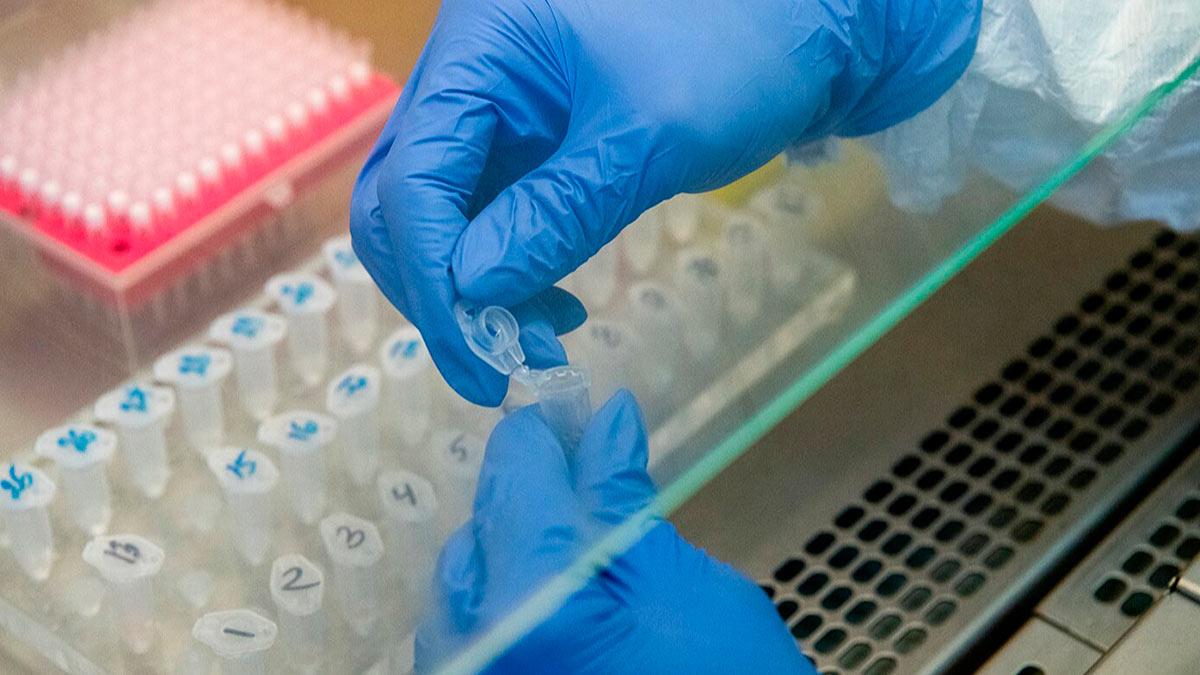 экспресс-тест на антиген к коронавирусу