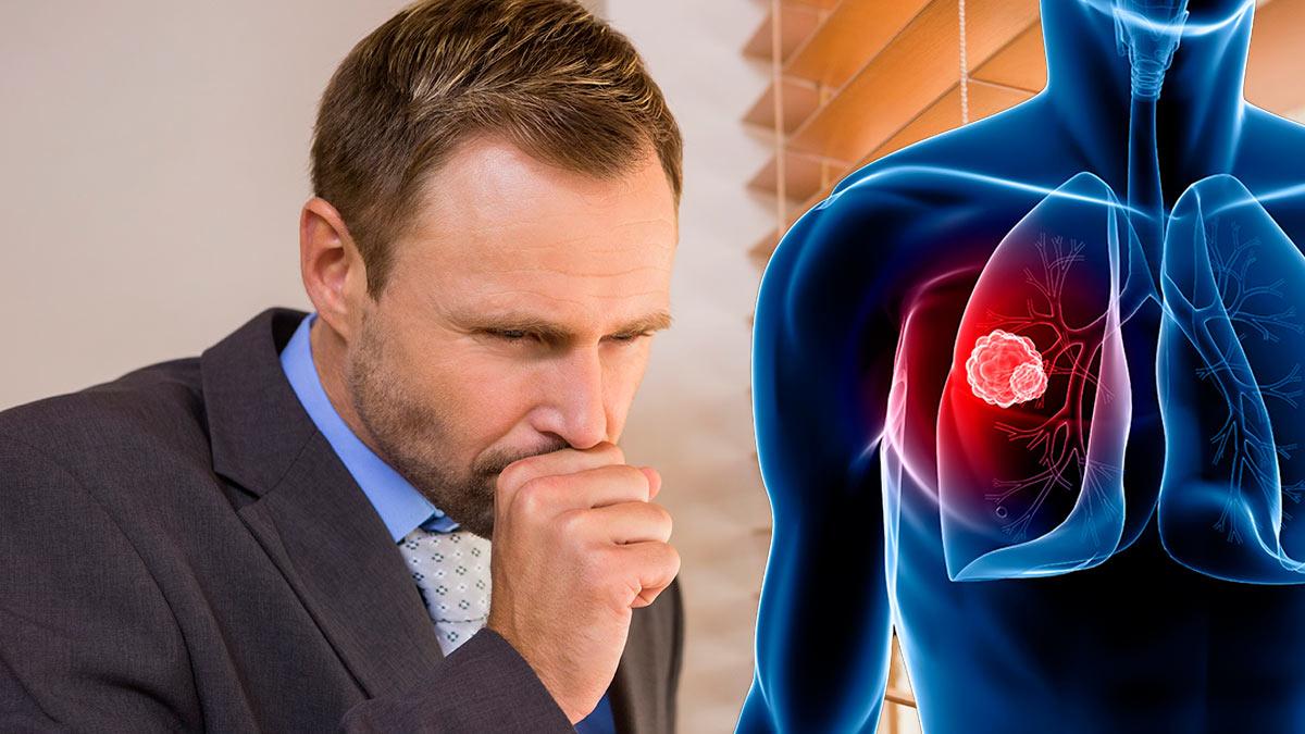 кашель рак легких
